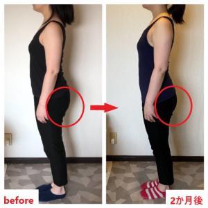 《ビフォー・アフター》2ヶ月で「ズボンがゆるくなりました。」長崎・大村脚痩せお尻痩せサロン