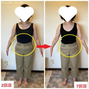 《ビフォーアフター》パツパツのズボンに余裕ができた!長崎・大村ダイエットサロン