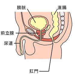 膀胱または尿道に異物を入れた人達の症例 ※泌尿器科資料 ※性的単語注意