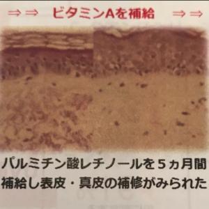 Q.ビタミンAは皮膚を薄くしますか?     立川エンビロンALII
