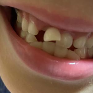 乳歯、抜歯しました