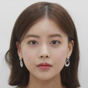 モニターレビュー第九:顔面輪郭+目整形+鼻整形+脂肪移植