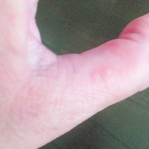 痒みの季節〜ずっと悩んでいた手足の水泡