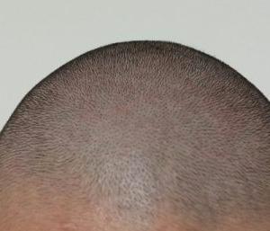 スキンヘッドな頭の剃り方(前編) 準備編