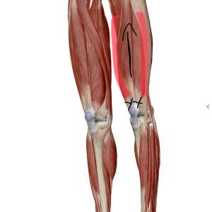 膝上の痛み~膝蓋骨筋腱移行部の痛み