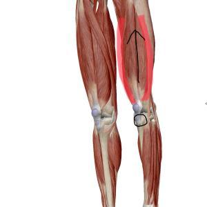 膝の下の痛み~膝蓋靭帯炎
