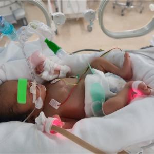 新生児遷延性肺高血圧