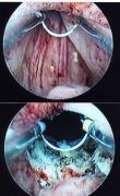膀胱頚部硬化症