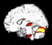 脳の仕組みと癒し